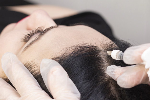 in beauty clinic they inject with a syringe in the black roots of the hair for regeneration. Stimulating hair growth. The process of PRP therapy. hair loss problem